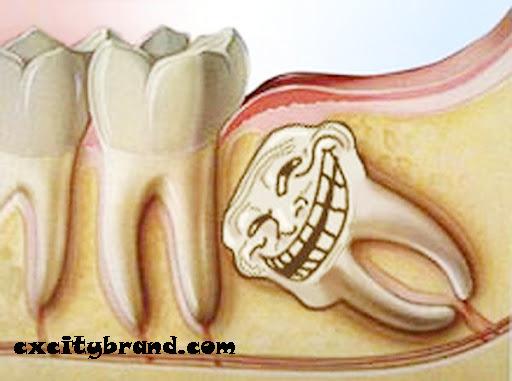yirmi yaş dişleri, diş hekimleri, Diş çekimi