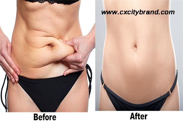 Liposuction İle Vücuttaki Yağlardan Kurtulun