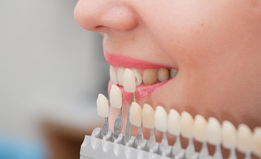 Lamina diş fiyatları uygulandığı kişiye gore farklılık gösterir mi?