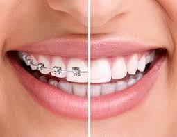 Ortodontinin Yararları Nelerdir?