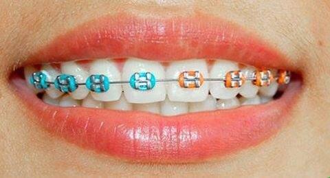 Ortodonti tedavisi hangi kusurları giderebilir?