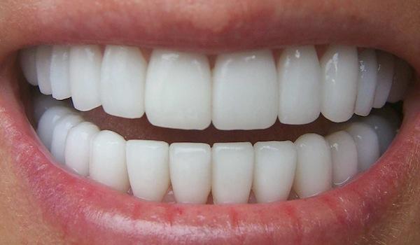 Zirkonyum Diş Fiyatları Neye Göre Belirlenmektedir?