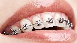 Diş Teli Nasıl Takılır Ve Nasıl Çıkarılır?
