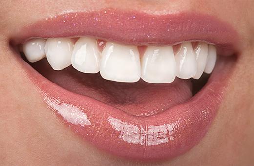 Lamine Diş Fiyatları Hakkında Bilinmesi Gerekenler
