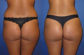 Bakırköy Liposuction Merkezleri Ücretleri