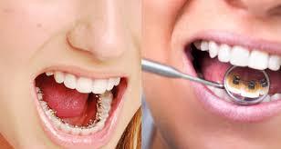 Ortodonti Tedavisinde Sabit ve Hareketli Uygulamalar