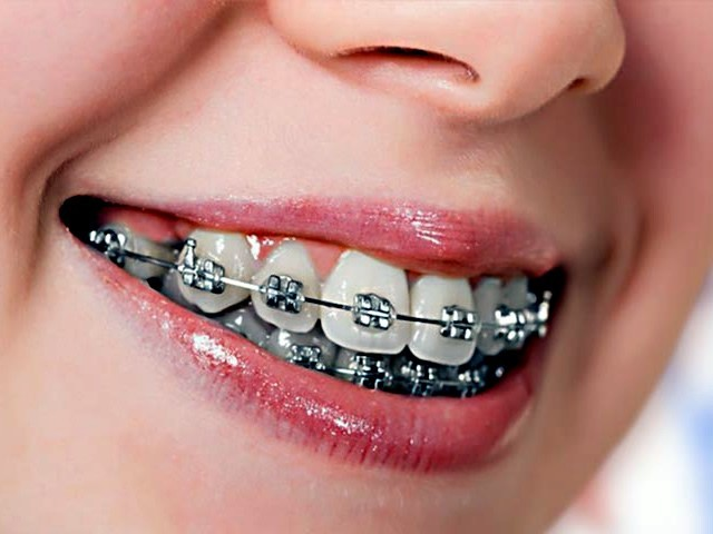 2019 Ortodonti Tedavisi Fiyatları