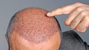 Saç Ekimi Doktorunun Kalitesi Neden Önemli?