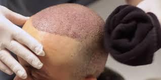 Profesyonel Saç Ektirme İstanbul