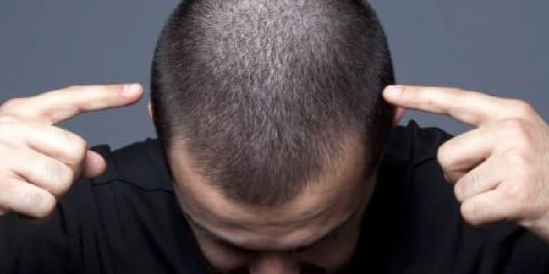 Profesyonel Saç Ekimi Fiyatları