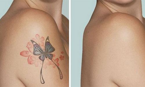 Dövme Sildirme Yöntemleri