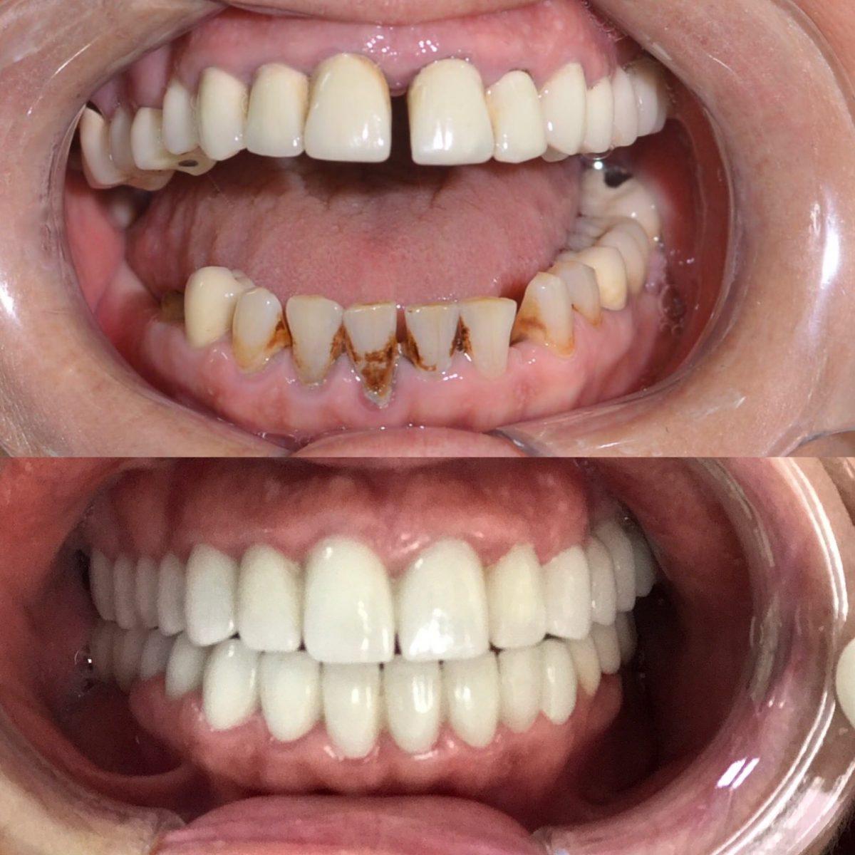 Sgk Zirkonyum Diş Kaplaması