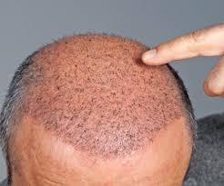 Saç transferi nasıl yapılıyor?