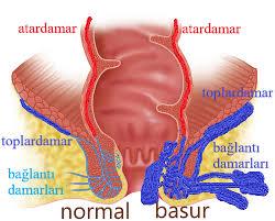 Ayakta hemoroid tedavisi nasıl yapılır?