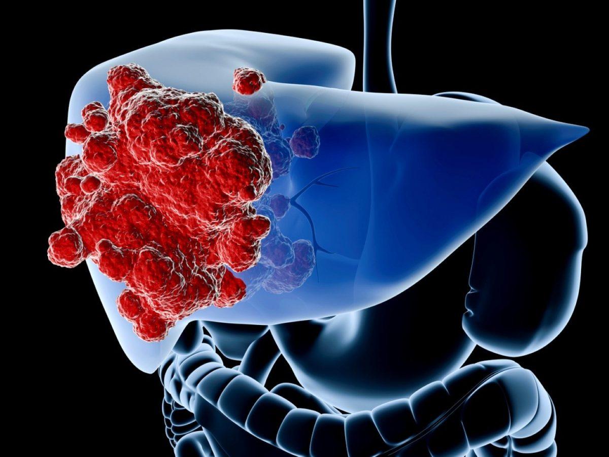 Karaciğer Kanseri Yaşam Süresi