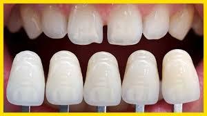 Lamine Diş Tedavisi Yapımı